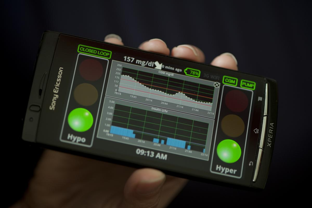The artifical pancreas works on a smartphone.